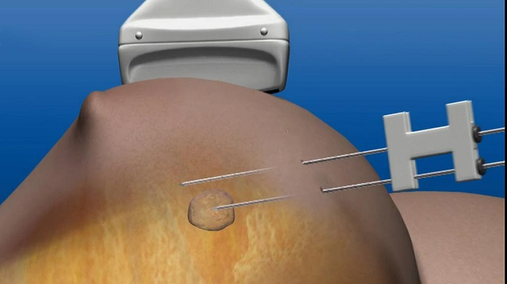 Image: Laser induced focal heat destroys breast tumors (Photo courtesy of Novian Health).