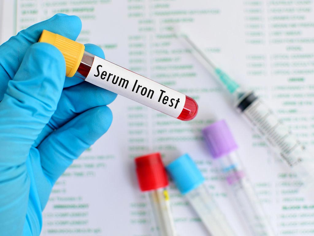Image: A new study claims iron levels can influence VTE and infection risk (Photo courtesy of 123rf).