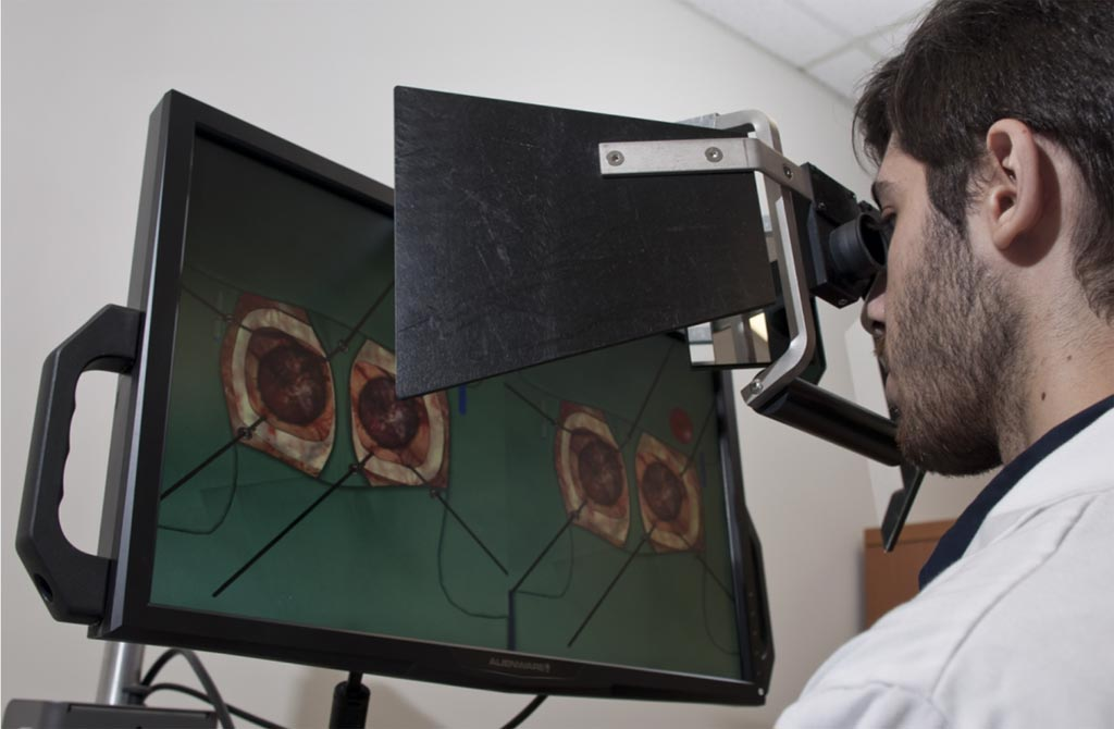 Image: A new study claims VR simulators can help categorize neurosurgeon expertise (Photo courtesy of Helmut Bernhard/ NEURO).