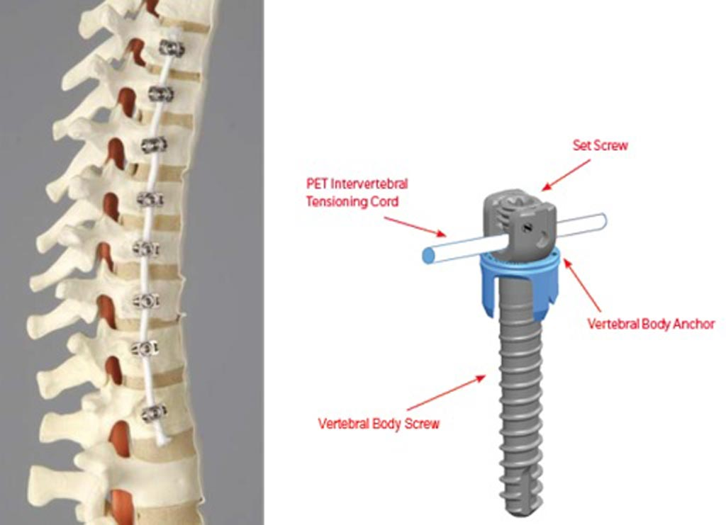 Image: Tether device proves that tethering the spinal cord can correct scoliosis (Photo courtesy of FDA).