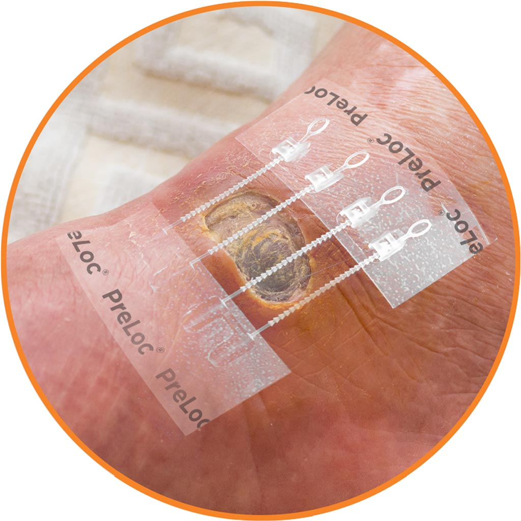 Image: The Preloc monofilament base before wound closure (Photo courtesy of Zipline Medical).