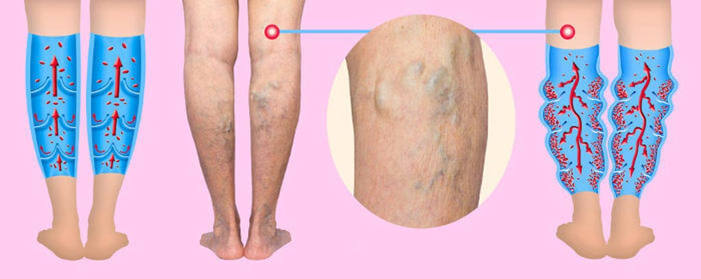 Image: A new study claims that surgery offers the best option for treating varicose veins (Photo courtesy of 123RF).