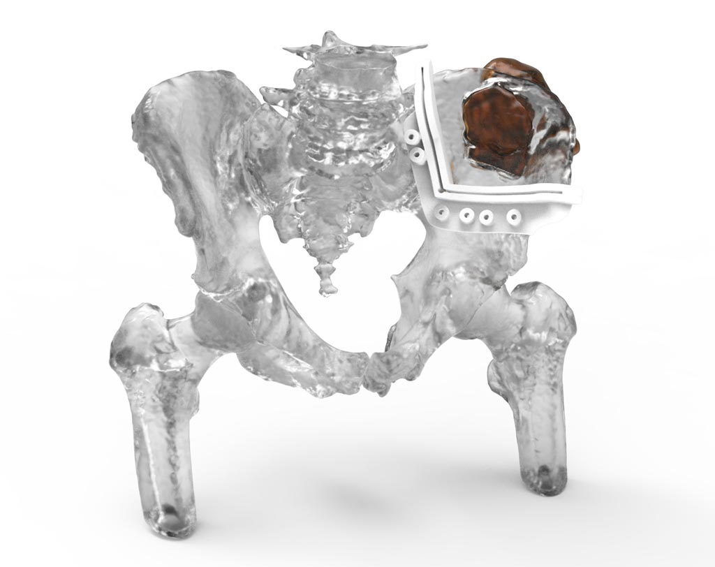 Image: Novel 3D software can help plan bone tumor resections (Photo courtesy of 3D Systems).