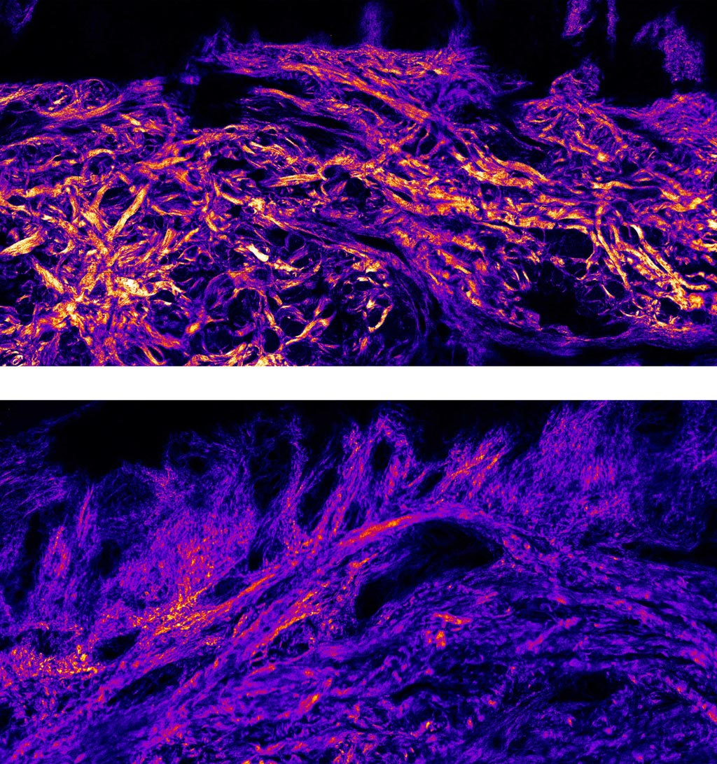 Image: Collagen bundles fibers are much thicker in plantar skin (T) than body skin (B) (Photo courtesy of Imperial).