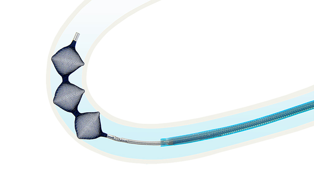 Image: The LOw-profile Braided Occluder (LOBO) (Photo courtesy of Okami Medical)