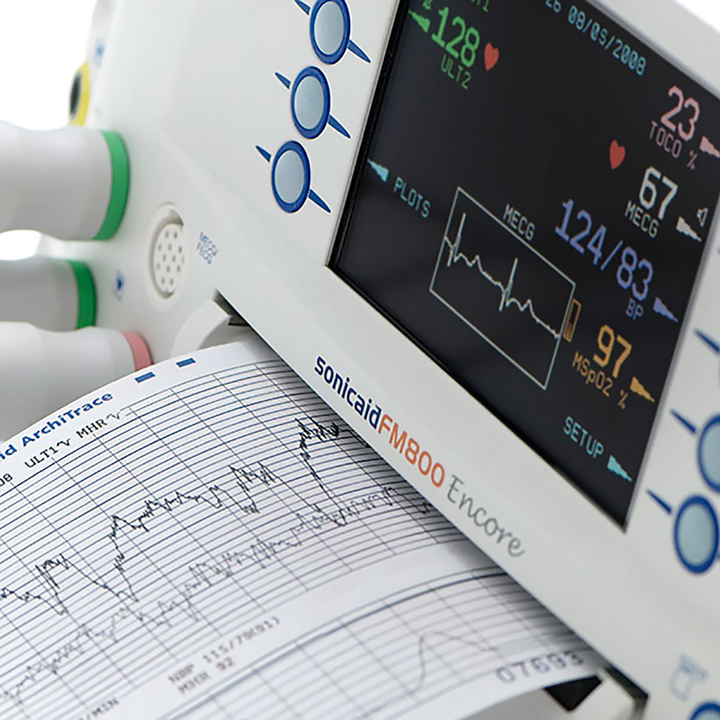 Image: Sonicaid FM800 Encore (Photo courtesy of Huntleigh Healthcare)