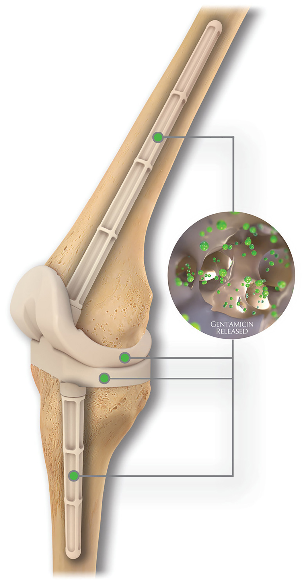Image: The REMEDY Stemmed Knee Spacer (Photo courtesy of OsteoRemedies)