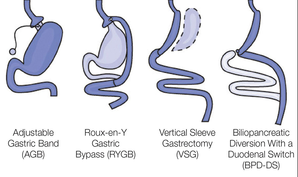 Image: The four common types of bariatric surgery (Photo courtesy of NIH)