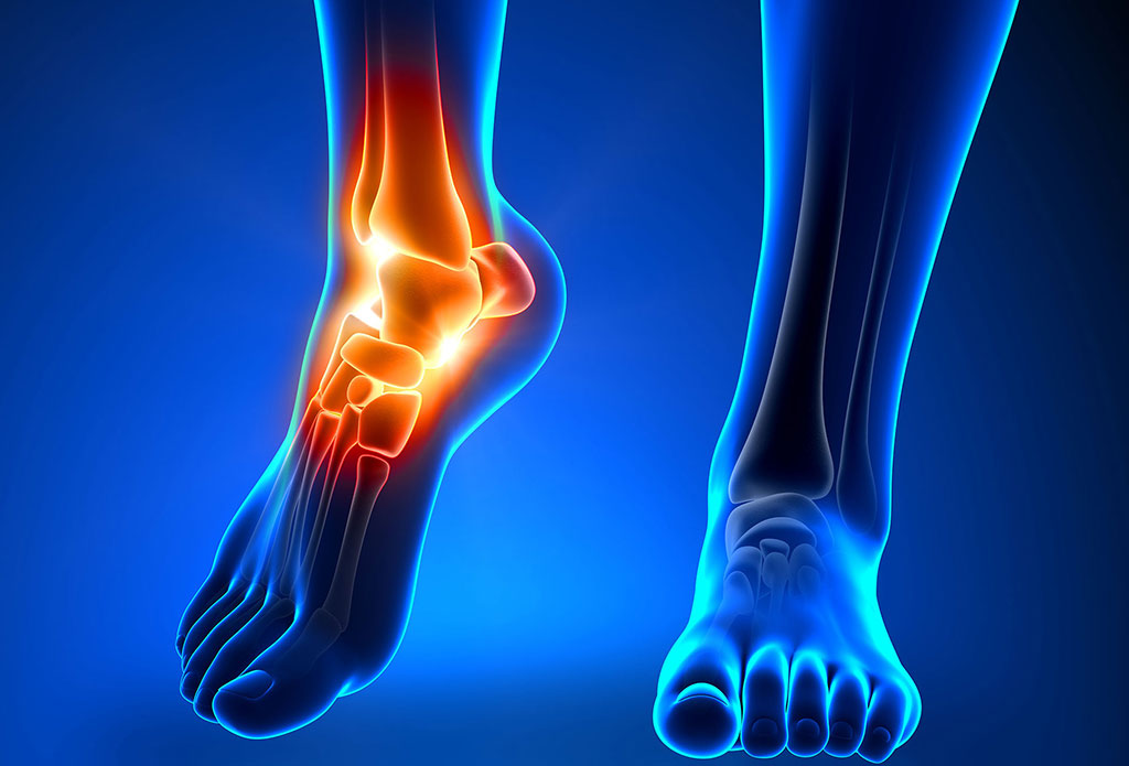 Image: Zadek Osteotomy can decrease stress on the Achilles tendon (Photo courtesy of iStock)