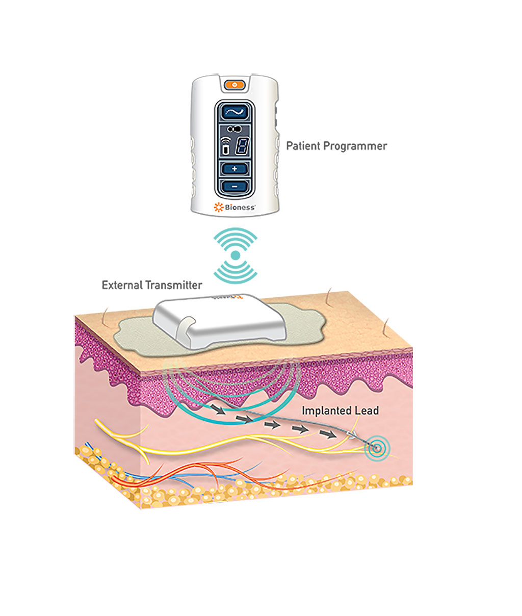 Image: The StimRouter neuromodulation system (Photo courtesy of Bioness)
