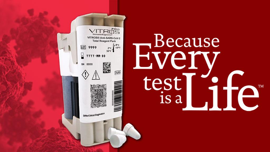 Image: VITROS Anti-SARS-CoV-2 Total Reagent Pack (Photo courtesy of Ortho Clinical Diagnostics)