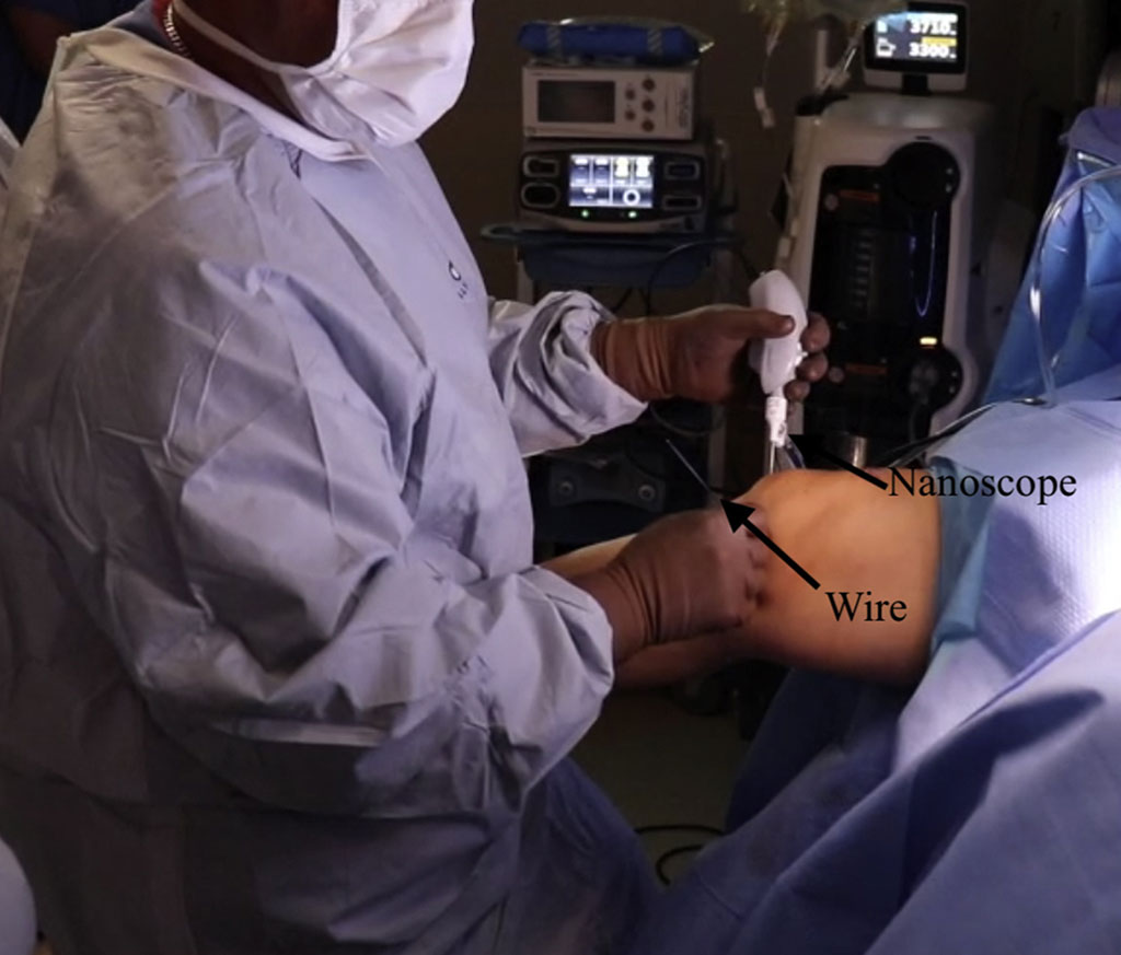Image: A nano-sized arthroscopy system offers incisionless access to joints (Photo courtesy of Chad Lavender/ Marshall University).