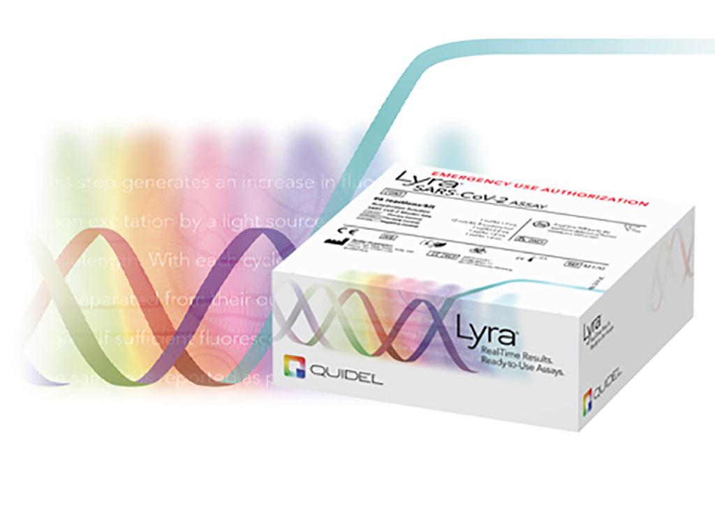 Image: Lyra SARS-CoV-2 Assay (Photo courtesy of Quidel Corporation)