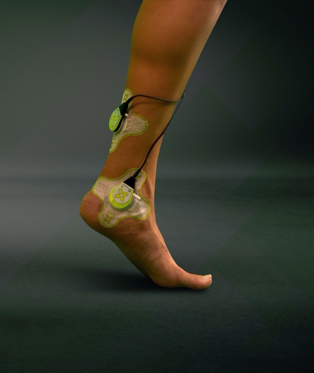 Image: The sam applied to Achilles tendon injury to stimulate collagen-matrix rebuilding (Photo courtesy of ZetrOZ Systems)
