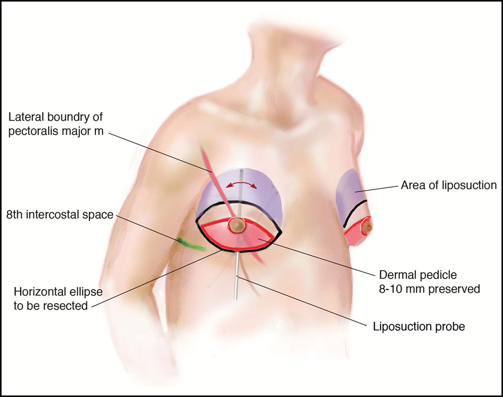 Image: Illustration of preoperative markings and pertinent reference points (Courtesy of UT Soutwestern)