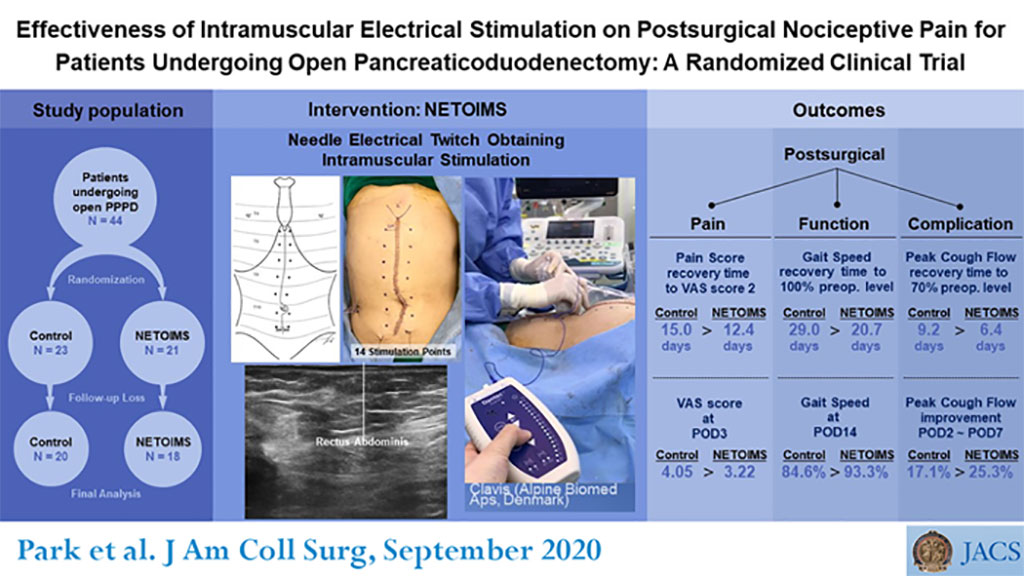 Image: Intramuscular electrical stimulation can reduce postoperative pain (Photo courtesy of JACS)