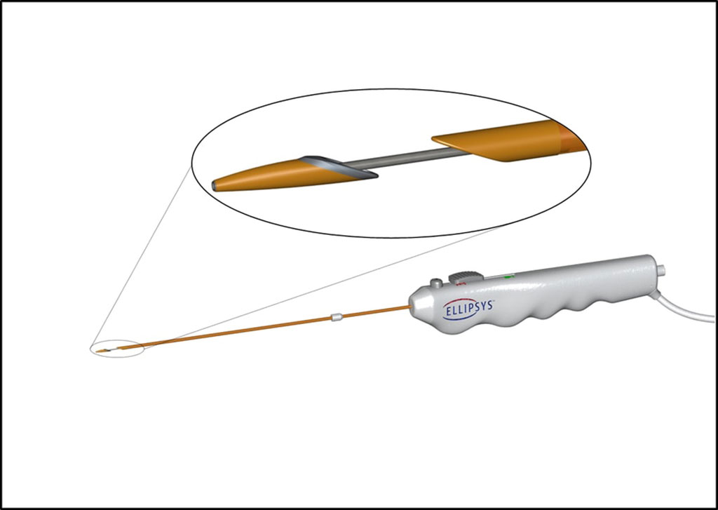 Image: The Ellipsys Vascular Access System (Photo courtesy of Avenu Medical)