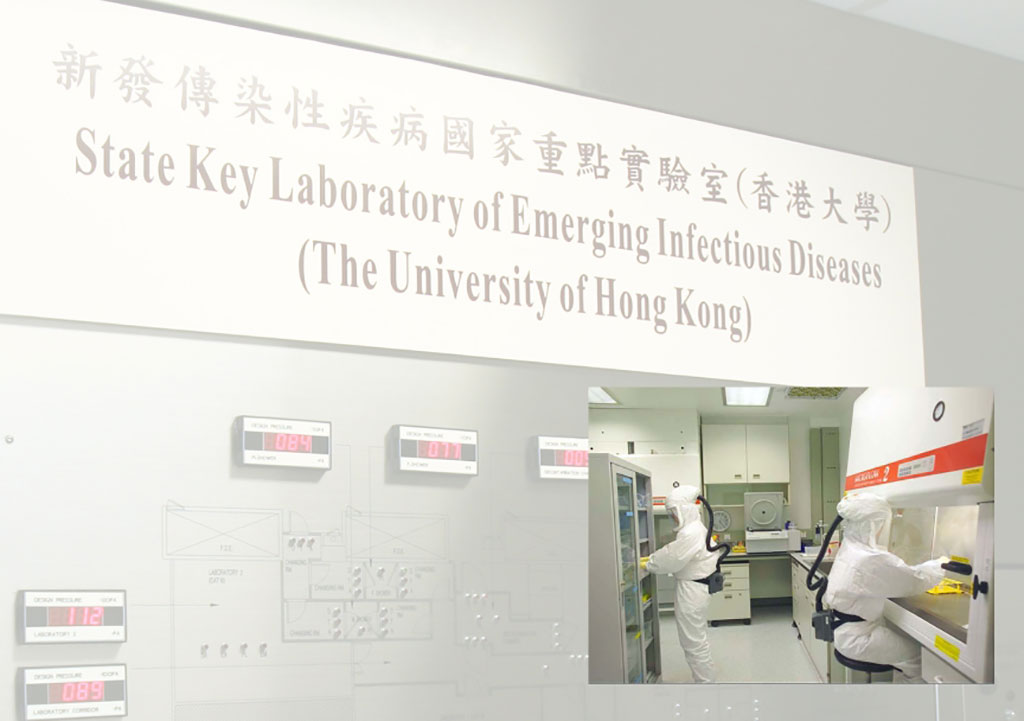 Image: China Begins Human Trial for First COVID-19 Nasal Spray Vaccine (Photo courtesy of University of Hong Kong)