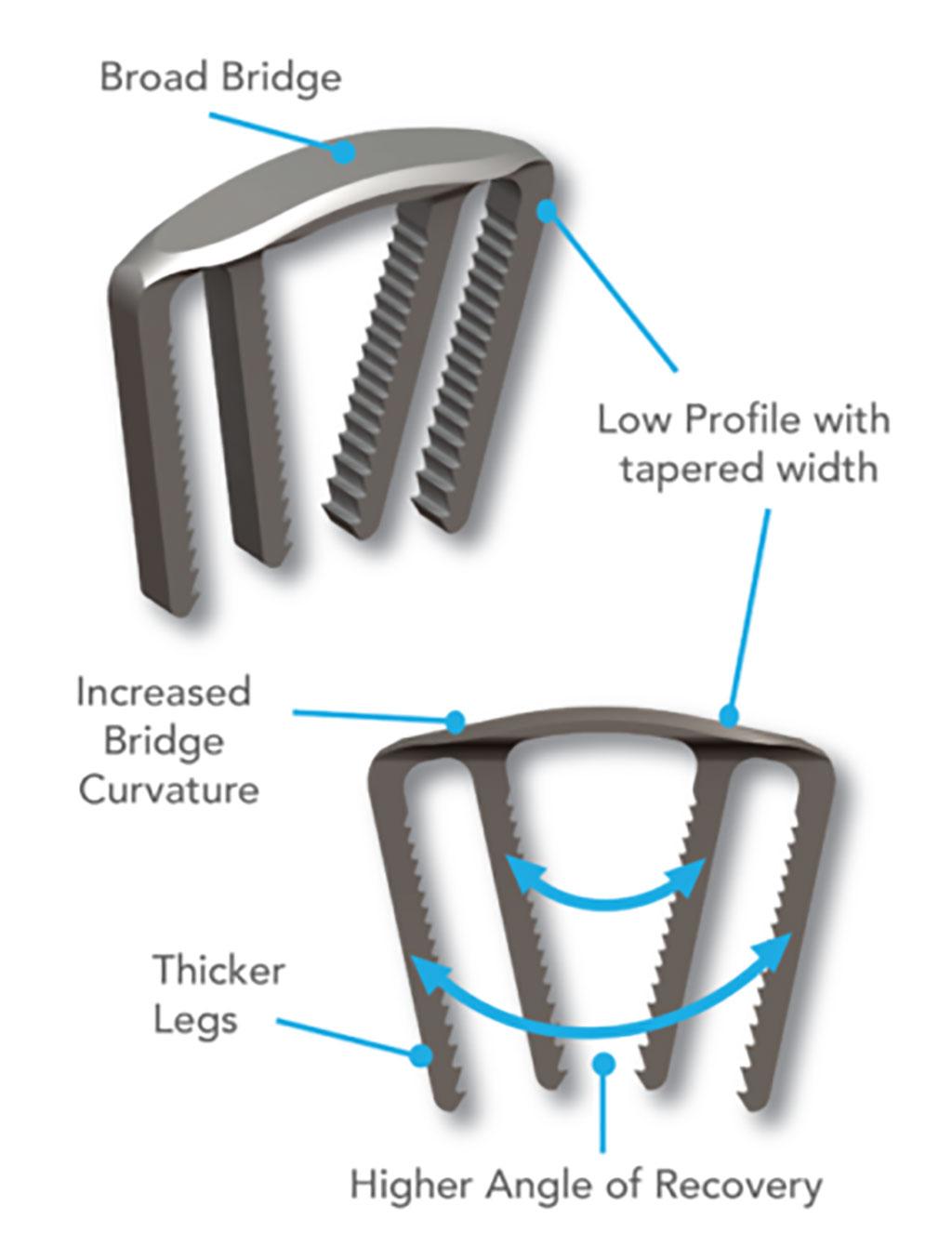 Image: The DynaClip Forte Bone Fixation System (Photo courtesy of Medshape)