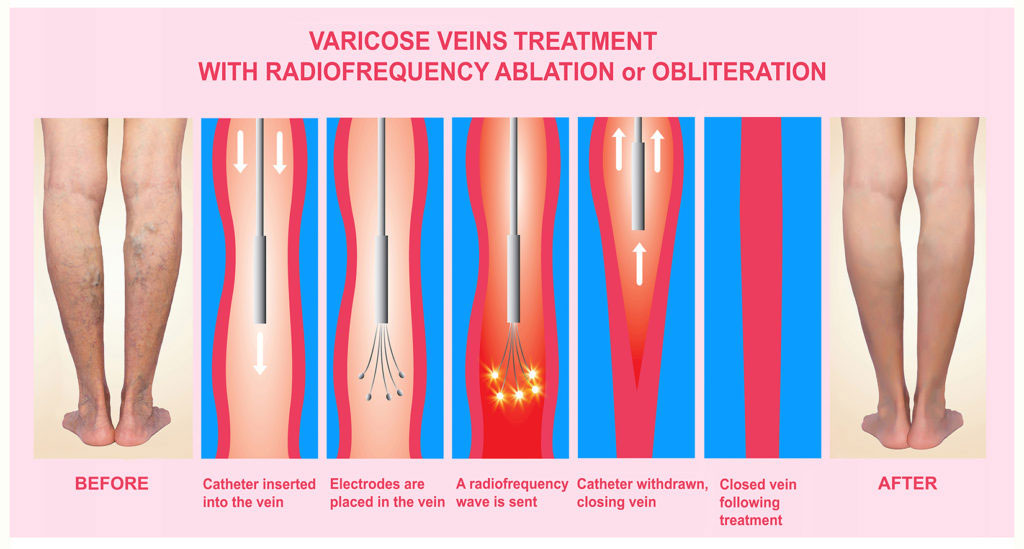 Image: Endovenous ablation helps recover from venous ulcers faster (Photo courtesy of Getty Images)