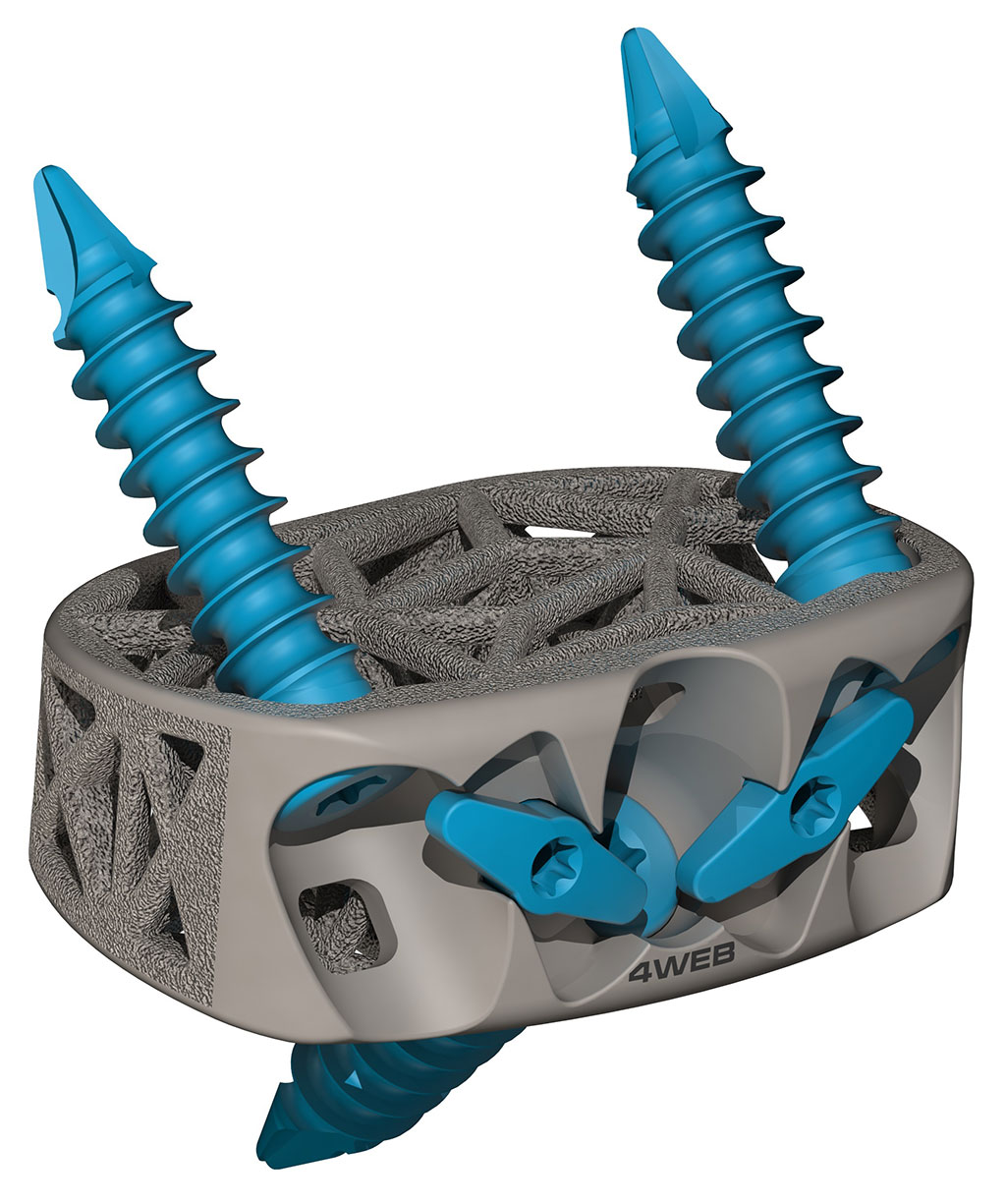 Image: The Stand-Alone Anterior Spine Truss System (ASTS-SA) (Photo courtesy of 4WEB Medical)