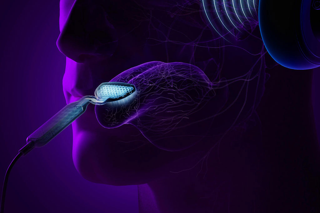 Image: Simultaneously stimulating the tongue and auditory system can treat tinnitus (Photo courtesy of Neuromod Devices)