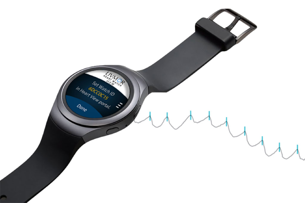 Image: The Halo AF Detection System on a Samsung smartwatch (Photo courtesy of Livmor)