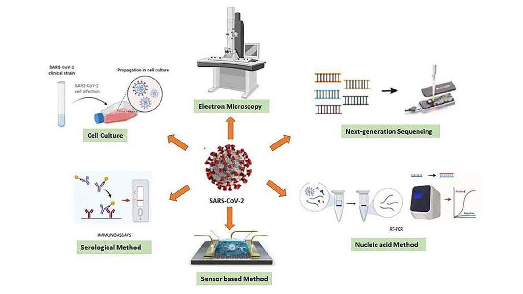 Image: Various diagnostic techniques can be used for sensing the RNA of SARS-CoV-2 (Photo courtesy of Saadet Alpdagtas and Elif Ilhan)