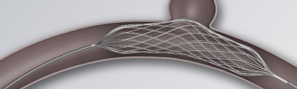 Image: The Comaneci adjustable remodeling mesh stent (Photo courtesy of Rapid Medical)