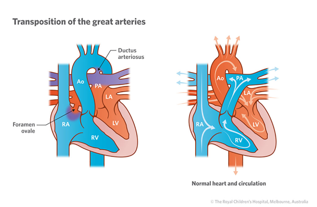 Image: In TGA, the aorta and pulmonary are reversed (Photo courtesy of Royal Children's Hospital)