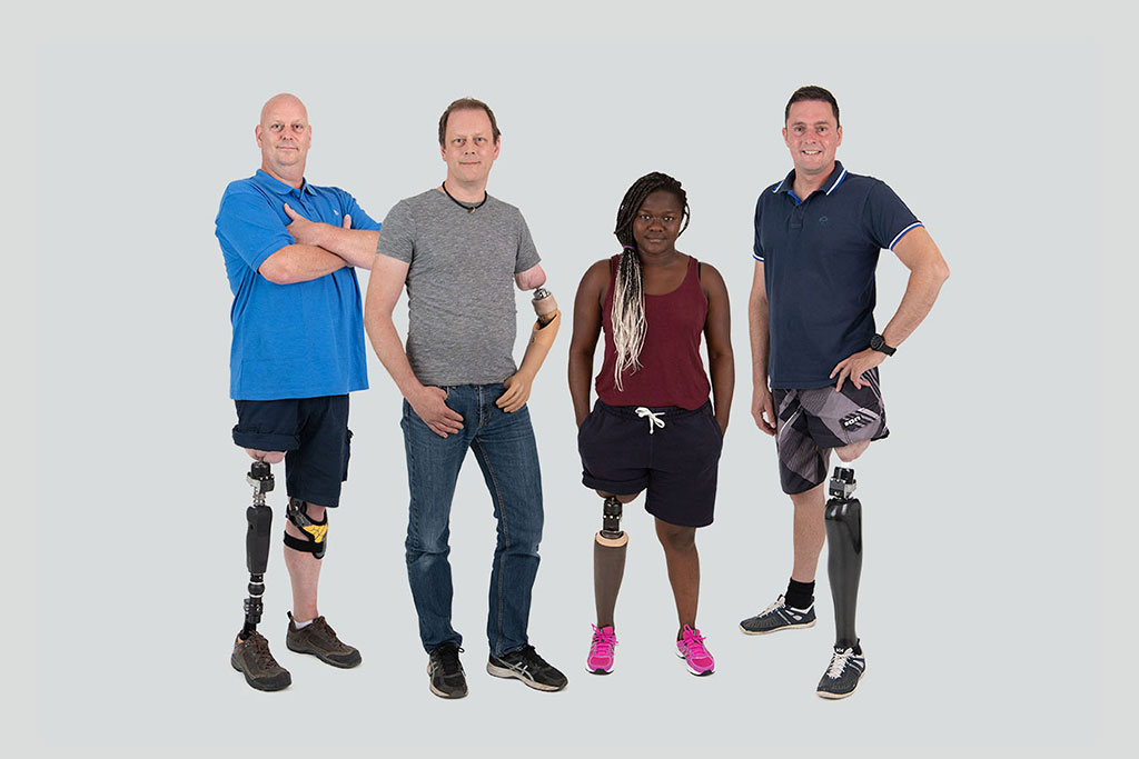 Image: A prosthesis that connects directly to the leg stump helps amputee rehab (Photo courtesy of Integrum)