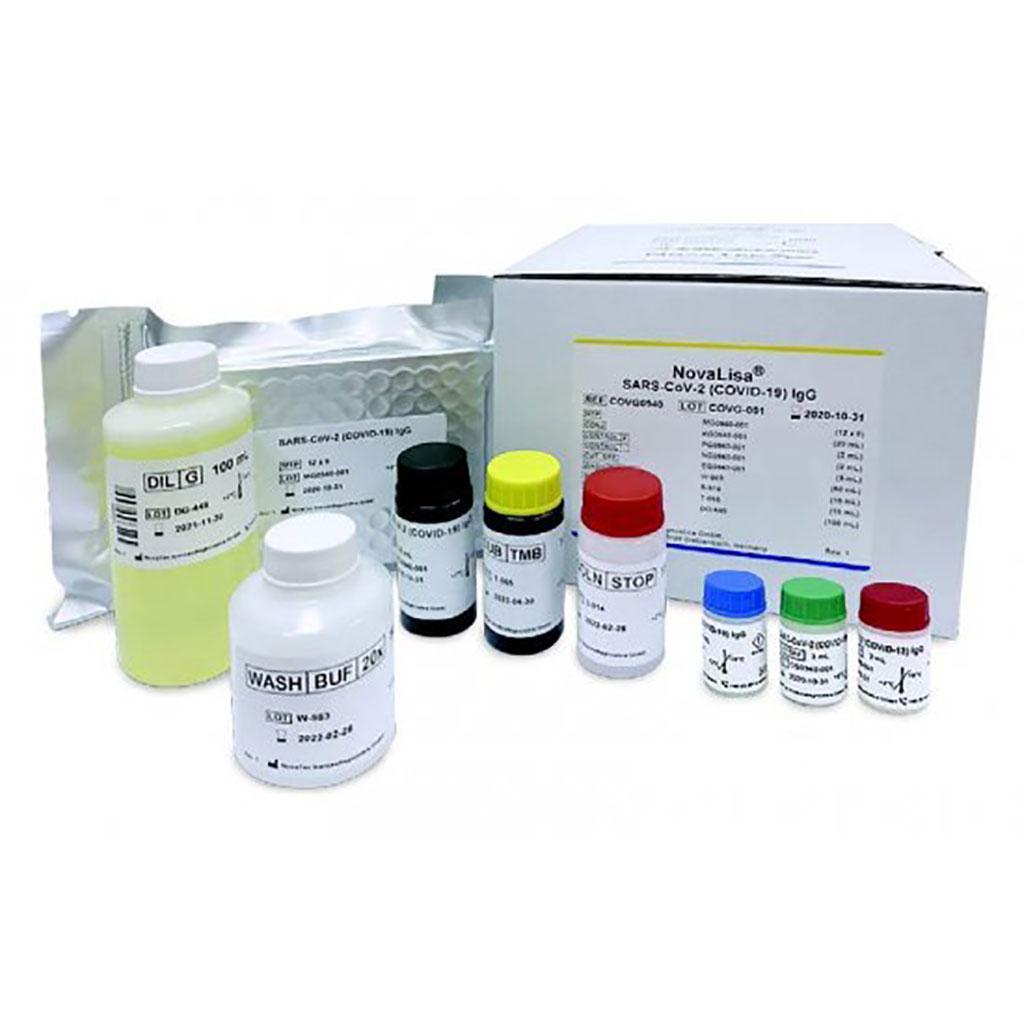Image: SARS-CoV-2 (COVID-19) IgG NovaLisa kit (Photo courtesy of Eurofins Genomics)
