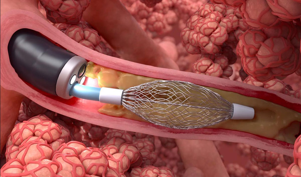 Image: The RheOx bronchial rheoplasty system (Photo courtesy of Gala Therapeutics)