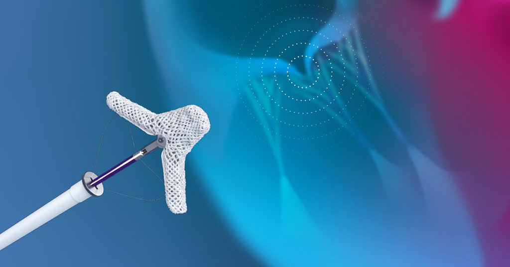 Image: The Abbott TriClip G4 for tricuspid regurgitation repair (Photo courtesy of Abbott)