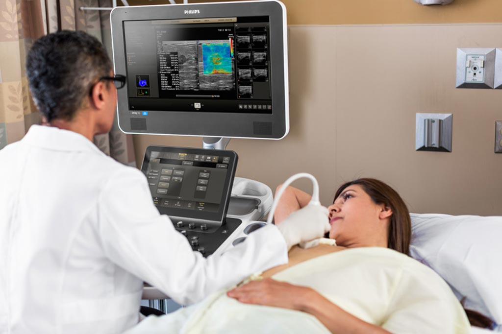 Image: Siemens Reportedly Considering Sale of Its Ultrasound Business (Photo courtesy of Philips Healthcare)