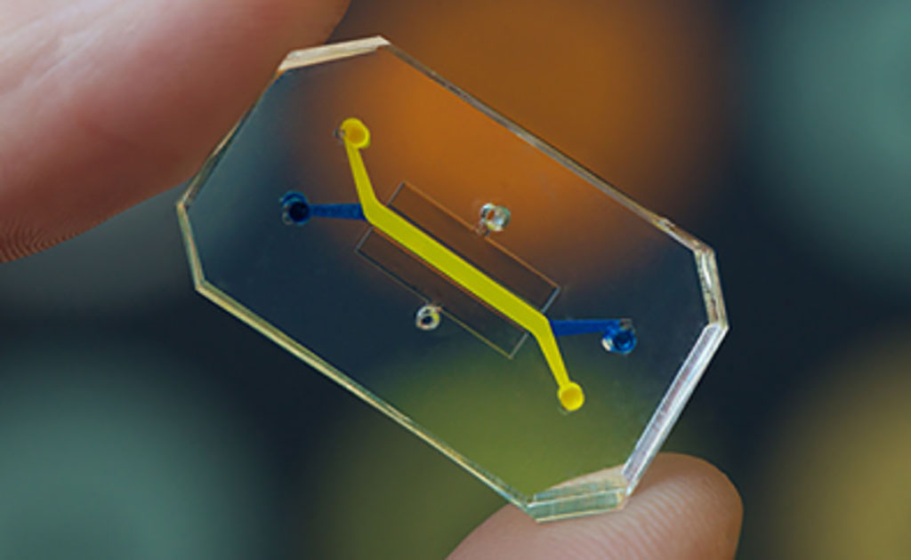 Image: Organ-on-a-Chip Technology Rapidly Repurposes Existing Drugs for Treatment of COVID-19 (Photo courtesy of Wyss Institute)
