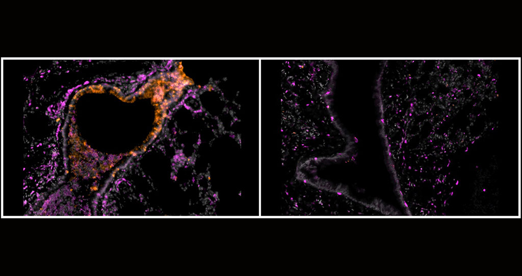Image: A new study published in Science Advances found that inhalable nanobodies targeting the spike protein of the SARS-CoV-2 coronavirus can prevent and treat severe COVID-19 in hamsters. Here, bronchioles of hamsters sick with COVID-19 untreated (left) and treated with inhalable nanobodies (right) show the impact of the approach (Photo courtesy of Nambulli et al., Science Advances)