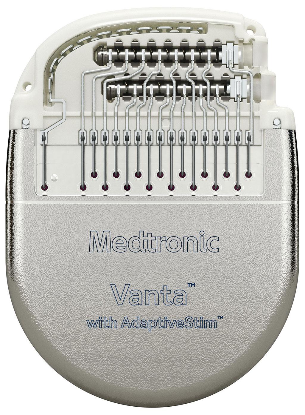 Image: The Vanta SCS implantable neurostimulator (Photo courtesy of Medtronic)