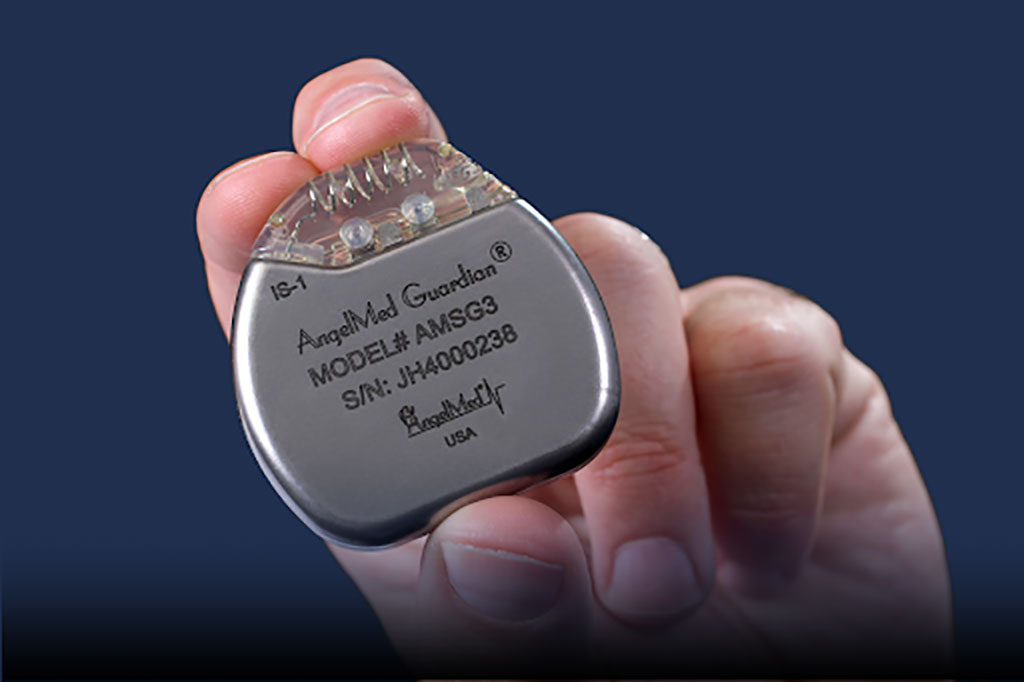 Image: The AngelMed Guardian implantable cardiac detection monitor (Photo courtesy of AngelMed)