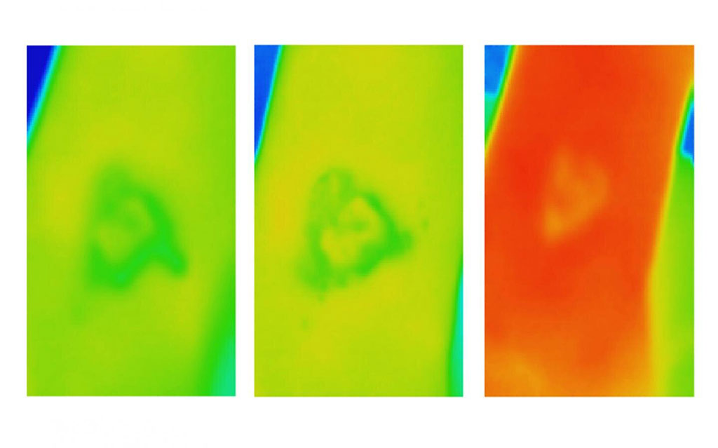 Image: Thermal images of a venous leg ulcer that ultimately failed to heal (Photo courtesy of RMIT)