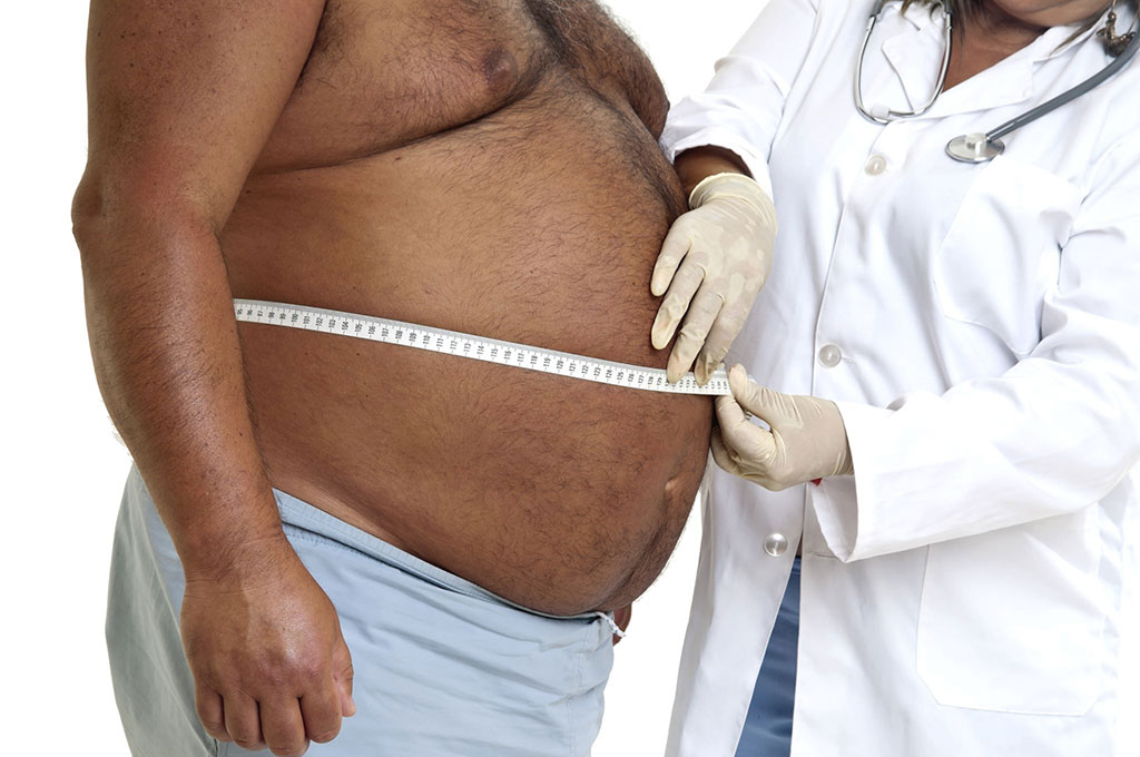 Image: Obesity offers a protective role in surgery patients (Photo courtesy of Megapixel)