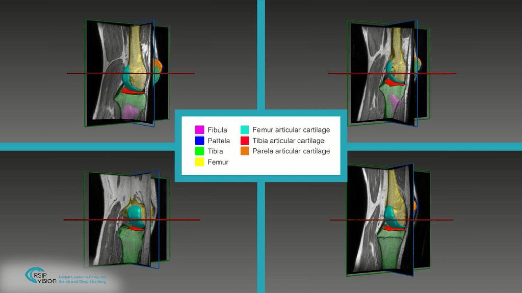A novel AI tool aids articular cartilage segmentation (Photo courtesy of RSIP Vision)