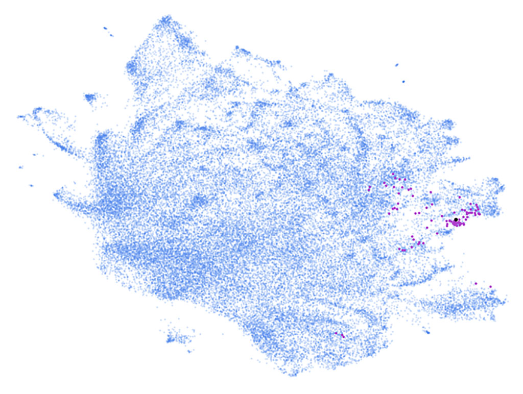 Phe2vec identified dementia cases (purple dots) from a two million patient database (blue dots) (Photo courtesy of MSSM)