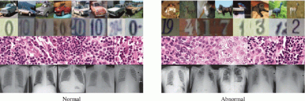 Image: AI Tool That Detect Anomalies in Medical Images Could Help Physicians Spot Onset of COVID-19 Pneumonia in X-Rays (Photo courtesy of Nina Shvetsova et al./IEEE Access)