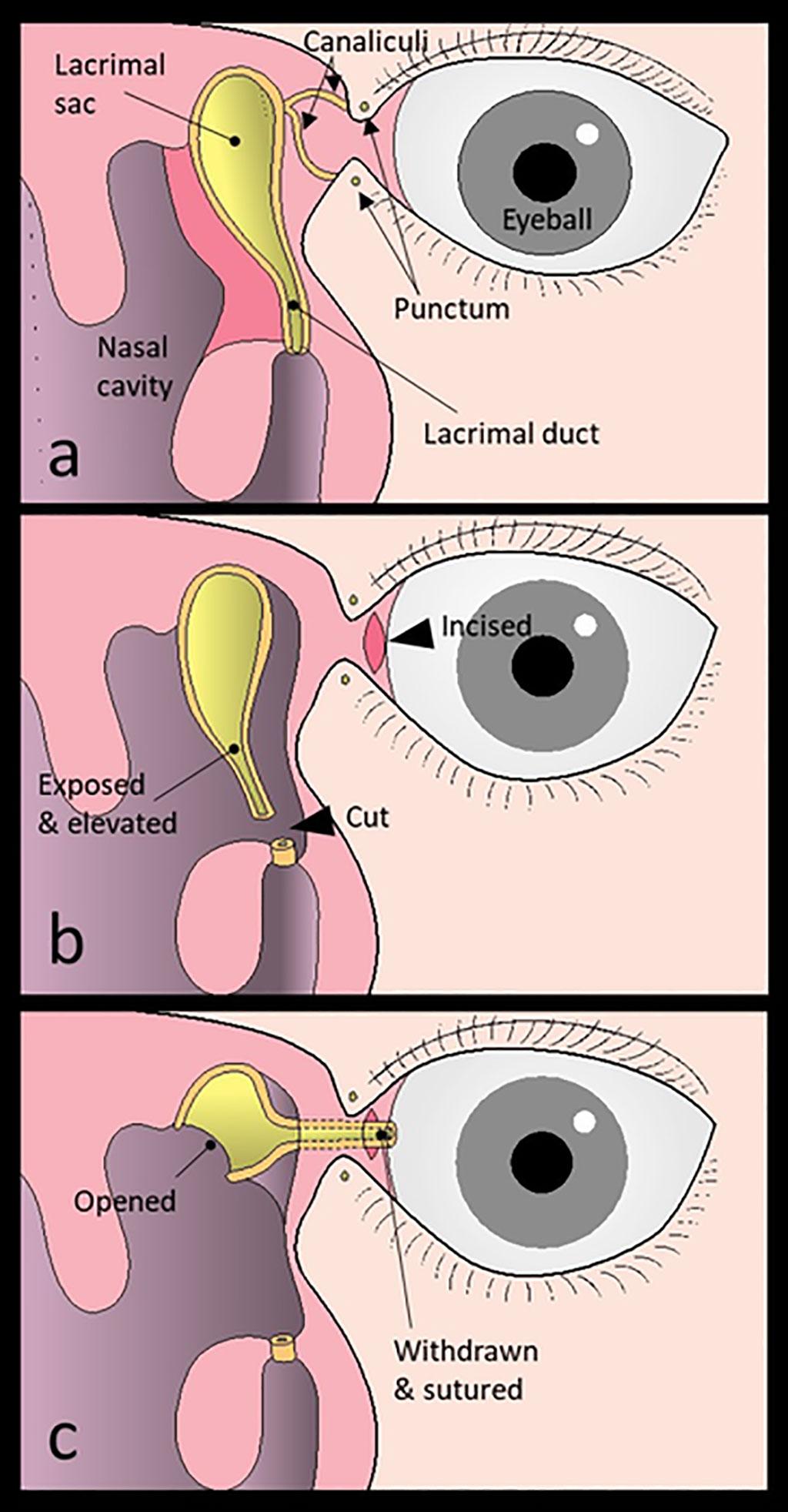 Image: Novel Surgical Procedure Treats Canalicular Obstruction (Photo courtesy of Munetaka Ushio/ Toho University)