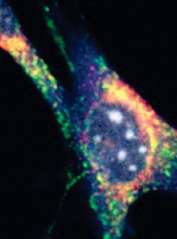 Image: Mouse fibroblast shows Clec16a (red), the lysosome protein Lamp1 (green), the autophagosome protein LC3 (blue), and DNA (gray). The yellow overlap of the red and green stains shows that Clec16a resides in the endolysosomal compartment, part of the cellular disposal system used in mitophagy (Photo courtesy of the University of Pennsylvania).