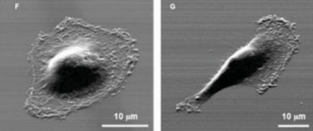 Image: Micrograph of individual cancer cells that were isolated according to their motility. The cell on the left is less likely to metastasize (Photo courtesy of University of Michigan).