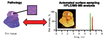 Image: A droplet-based surface sampling probe mass spectrometry diagnostic tool was successfully used in a proof-of-concept study profiling of hormones in human pituitary gland and tumor thin tissue sections (Photo courtesy of Kertesz V et al., 2015, and the journal Analytical and Bioanalytical Chemistry).