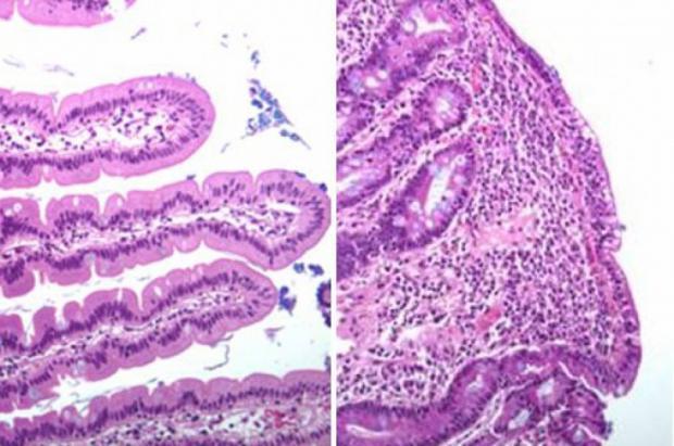 Гистология здоровой двенадцатиперстной кишки (слева) и гистология двенадцатиперстной кишки, демонстрирующая ворсинки, пораженные глютеновой болезнью (справа) (фото любезно предоставлено Университетом Осло).