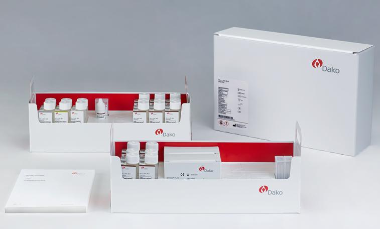 Иммуногистохимический анализ PD-L1 IHC 28-8 pharmDx (фото любезно предоставлено компанией Dako Denmark).